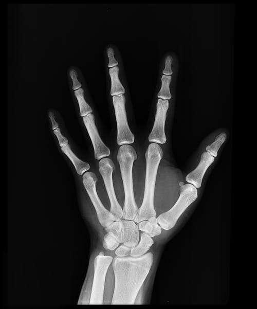 Impressora de raio x