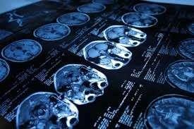Impressora de tomografia